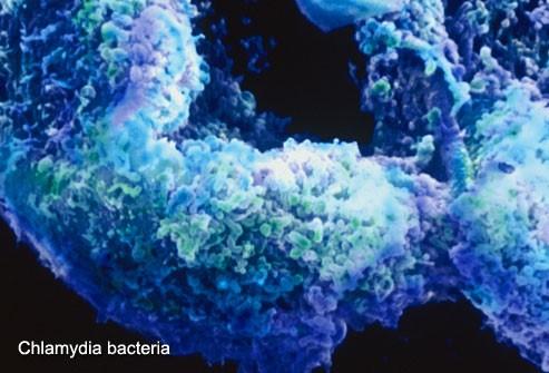 Chlamydia bacteria